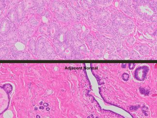Human Tumor & Normal Matched Pair Tissue FFPE Sections