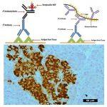 Immunostain Detection System