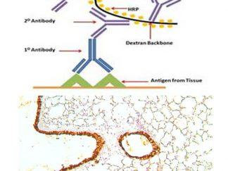 Polymer Based 1-Step IHC System
