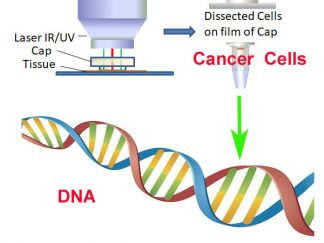 Genomic DNA from Pure Tumor Cell Population