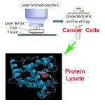 Protein from Pure Tumor Cell Population